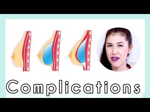 Les aspects des méthodes de laugmentation de la poitrine