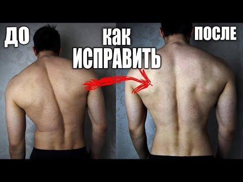 Упражнения для и выпрямления осанки