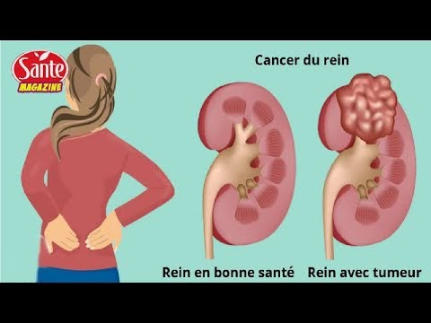 Traitement de lhypertension populaire