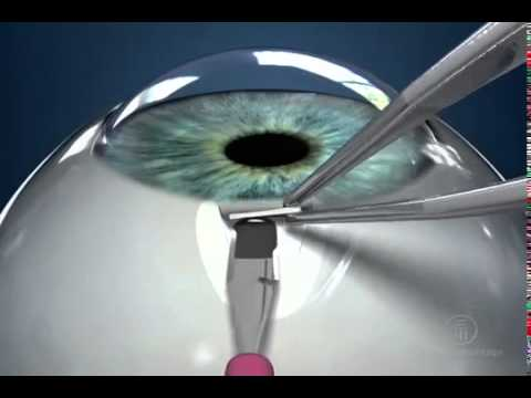 ExPRESS Miniature Glaucoma Device