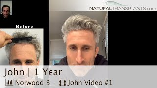 Receding Hairline Hair Transplant Results