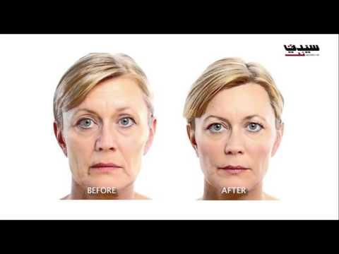 أحدث التقنيات في إجراء العمليات التجميلية للوجه مع الدكتور باتريك صنيفر