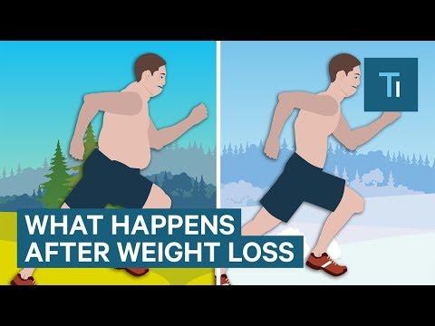 Gewicht und Blutdruck-Tabelle