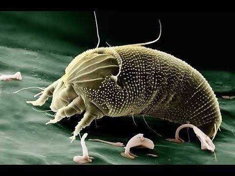 Die Hauptspeziese der Würmer beim Menschen