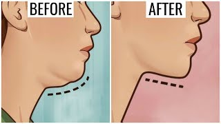 Get Rid of DOUBLE CHIN & NECK FAT Permanently - How to Look Slim | Anaysa