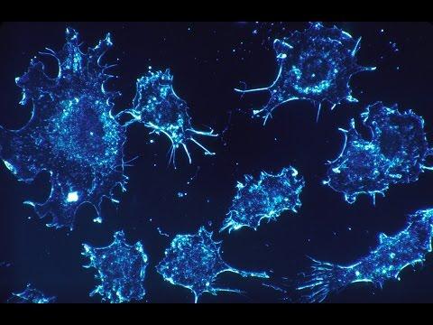 Come curare prostatite batterica