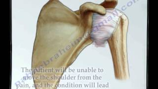 Frozen Shoulder - Everything You Need To Know - Dr. Nabil Ebraheim