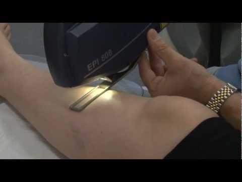 Die biologischen Methoden der Behandlung der Schuppenflechte