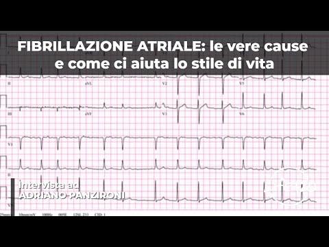 Diapositive ipertensione