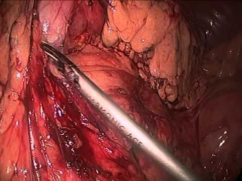 Vagal Sparing Resection Of Esophagus