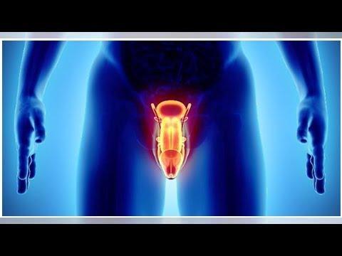 Può essere la prostata a 34