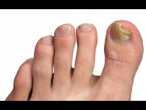 Como no contagiarse por el hongo de las uñas en la piscina