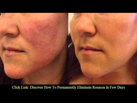 Video 4 symptoms of rosacea | Rosacea natural treatment
