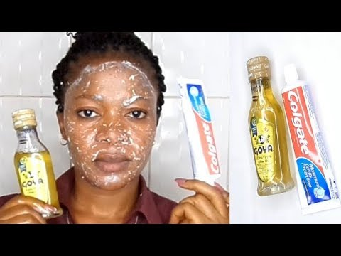 EVERYNIGHT APPLY COLGATE TOOTHPASTE AND OLIVE OIL WATCH WHAT HAPPENS TO YOUR FACE IN 5 MINUTE
