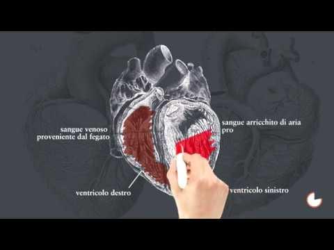 Linfonodi nellinguine della prostata
