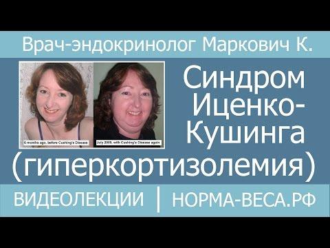 Синдром Иценко-Кушинга (гиперкортизолемия)