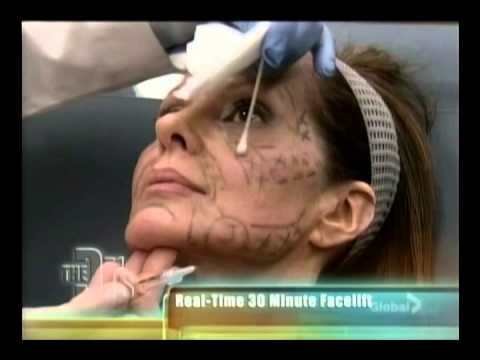 VolumaLift on The Doctors Show | SpaMedicaTV    Video Thumbnail