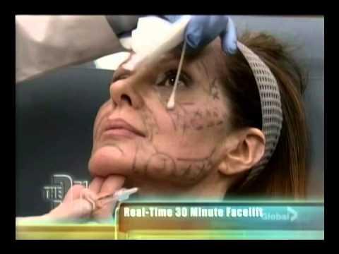VolumaLift on The Doctors Show | SpaMedicaTV Video Thumbnail
