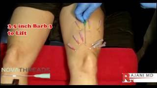 NovaThread Knee Lift -Dr Rajani