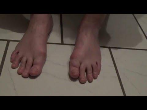 Schmerzen in der Lendengegend und Durchfall