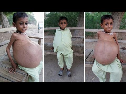 Живот 9-летнего мальчика вырос до невероятных размеров