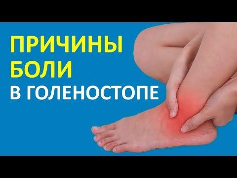 Боли в суставах ног лечение мазь