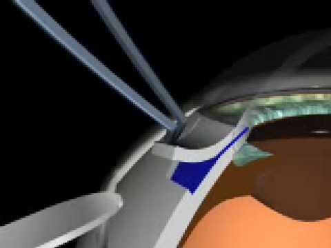 Die Maske der Quark mit dem Peroxid für die Person