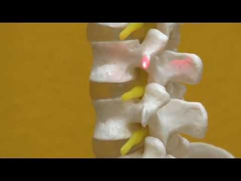 Der Schmerz in der Lende zurückgebend in den rechten Hoden