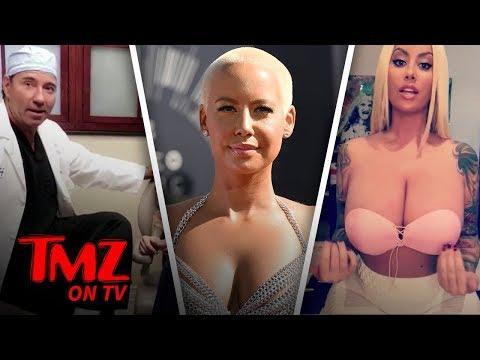 [TMZ] Say Bye To Amber Rose's Big Breast!