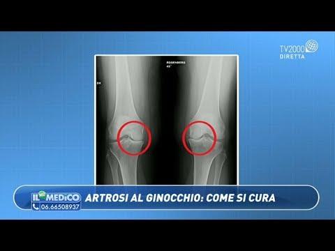 I sintomi di vasi di infrazione della colonna vertebrale cervicale