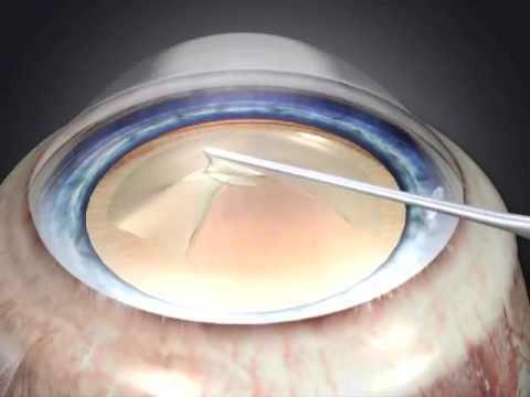 Катаракта - замена хрусталика глаза