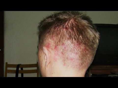 Причины прыщей на голове в волосах?