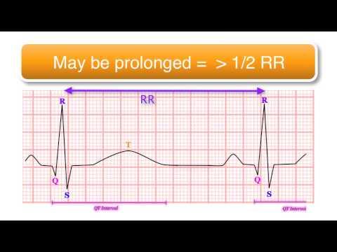Video ECG basics 10/10 - The QT Interval