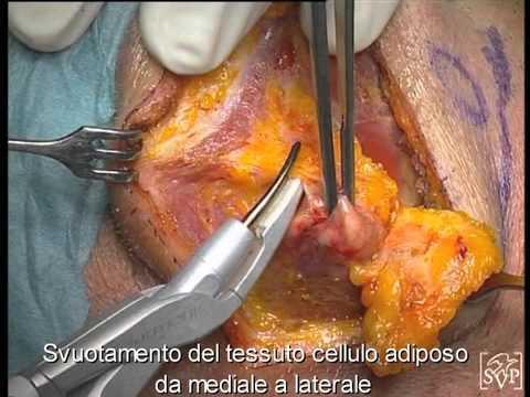 Fisioterapia per lesioni del gomito