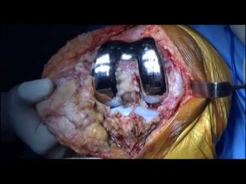 Wie ein Masseur in Osteochondrose finden