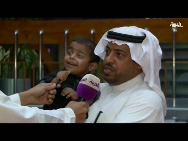 زراعة قلب لرضيع سعودي عمره 23 شهراً