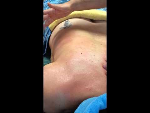 Der kyphotische Brustteil