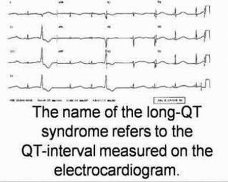 Video An Introduction To Long-QT Syndrome