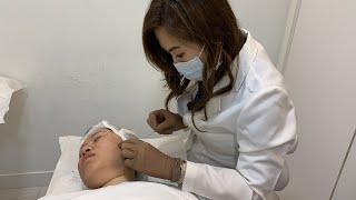 【Thread Lifting 自然提拉】