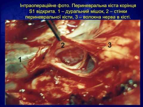 Барнаул эндопротезирование тазобедренного сустава