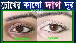 চোখের নিচের কালো দাগ দূর মাত্র ২ দিনে Beauty Tips Bangla , Potato For Dark Circles #BD Beauty Tips