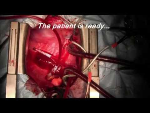 Transplantacja serca