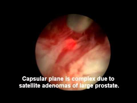 Modifiche alla prostata difuzno