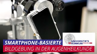 Smartphone-basierte Bildgebung in der Augenheilkunde