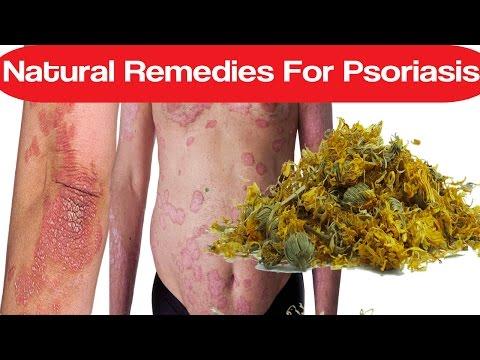 Eczema virale di una fotografia