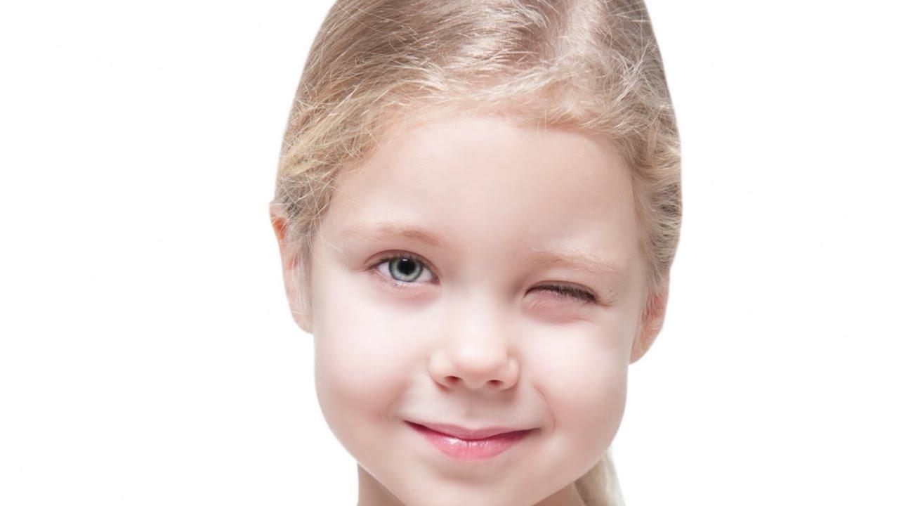 ¿Cómo detectar el astigmatismo en los niños?
