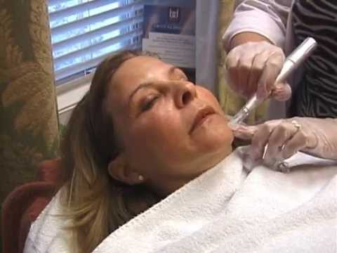Micro-Needling at the Williams Center Latham/Albany NY