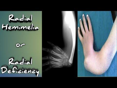 Roșeață și durere la nivelul articulației