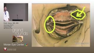 Optic Nerve Sheath Fenestration for IIH
