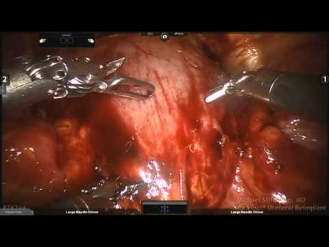da Vinci Adult Ureteral Reimplant with Firefly tm Technology